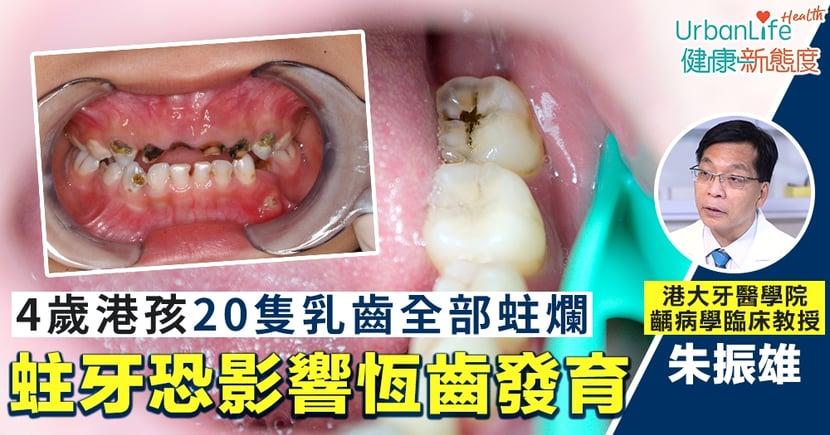 【幼兒蛀牙處理】4歲港孩20隻乳齒全部蛀爛 港大牙醫學院:恐影響恆齒發育、易發燒不適