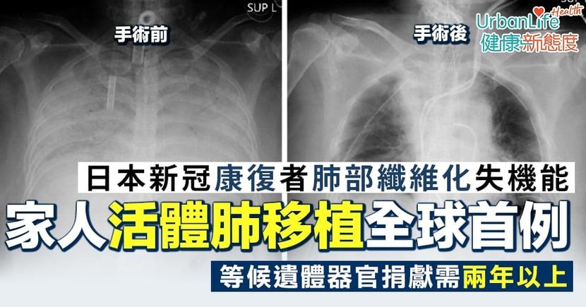 【新型肺炎肺部纖維化】日本女康復者肺部失機能 丈夫兒子捐肺活體移植創全球首例