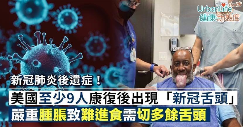 【新冠肺炎後遺症】美國至少9人康復後出現「新冠舌頭」 嚴重腫脹致難進食、說話需切多餘舌頭