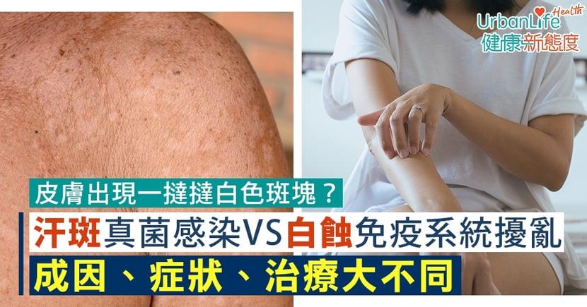 【汗斑成因】皮膚出現一撻撻白色斑塊?汗斑VS白蝕症狀、治療大不同