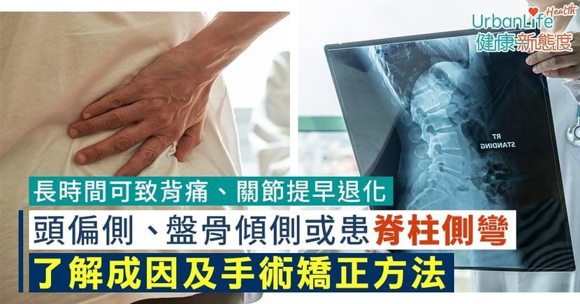 【脊柱側彎治療】肩膀高低不一、盤骨傾側或患脊柱側彎?了解成因及手術矯正方法