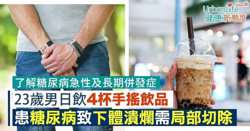 【糖尿病併發症】23歲男日飲4杯手搖飲品 患糖尿病致下體潰爛需局部切除
