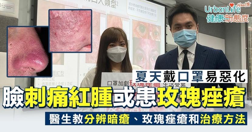 【玫瑰痤瘡症狀】患者面部刺痛紅腫、夏天戴口罩惡化 醫生教與暗瘡分別和治療方法