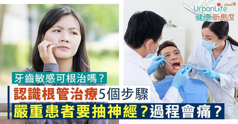 【牙齒敏感治療】嚴重患者要抽神經?過程會痛?認識根管治療5個步驟