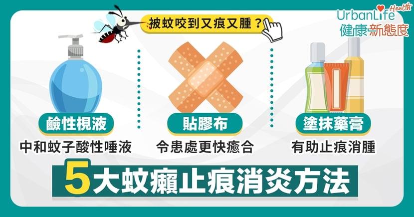 【蚊咬止痕】你是惹蚊體質嗎?大汗、體溫高易被蚊叮!5大蚊癩止痕消炎方法