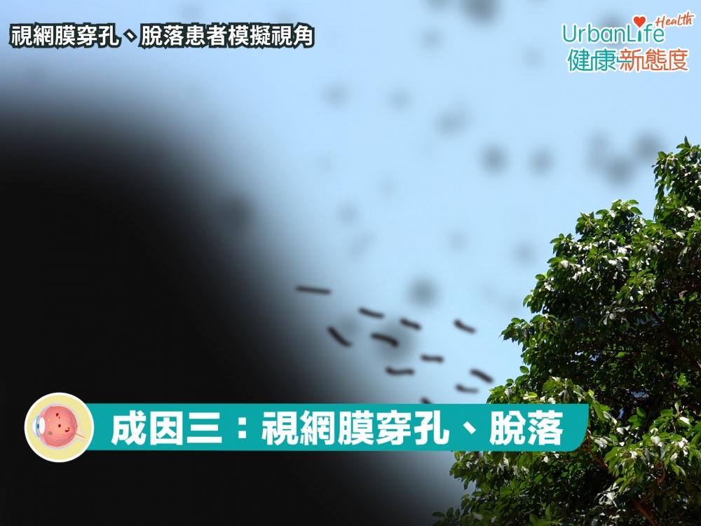 視網膜穿孔、脫落患者,亦有機會出現飛蚊,需立即處理。