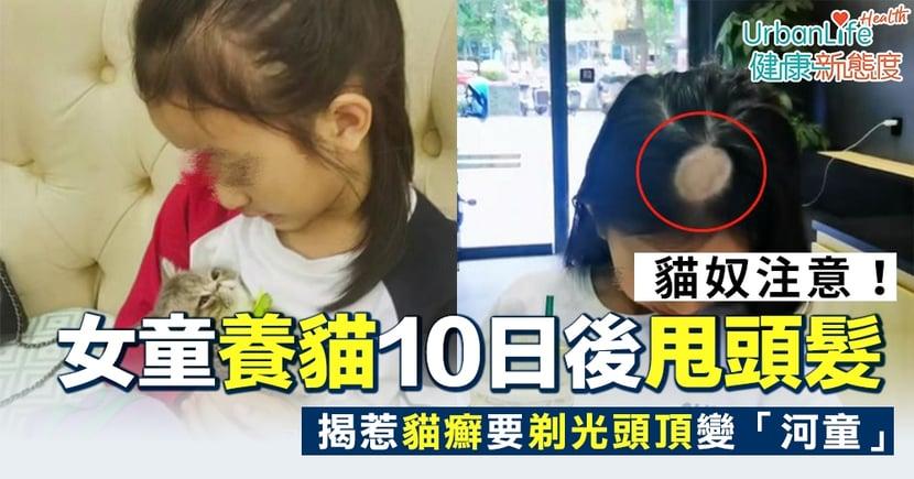 【貓癬症狀】貓奴注意!女童養貓10日後甩頭髮 揭惹貓癬要剃光頭頂變「河童」(附治療方法)