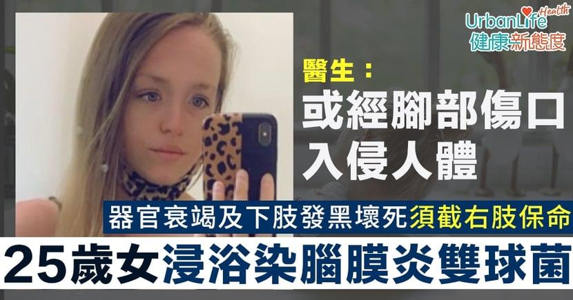 【細菌感染】25歲女浸浴時染腦膜炎雙球菌 器官衰竭及下肢發黑壞死須截右肢保命