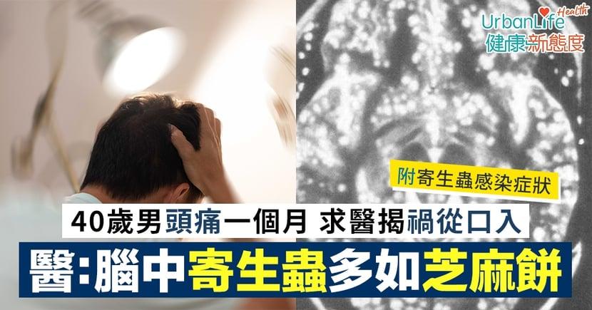 【寄生蟲上腦】40歲男頭痛一個月求醫 揭常食某一種零食致腦中寄生蟲多如芝麻餅