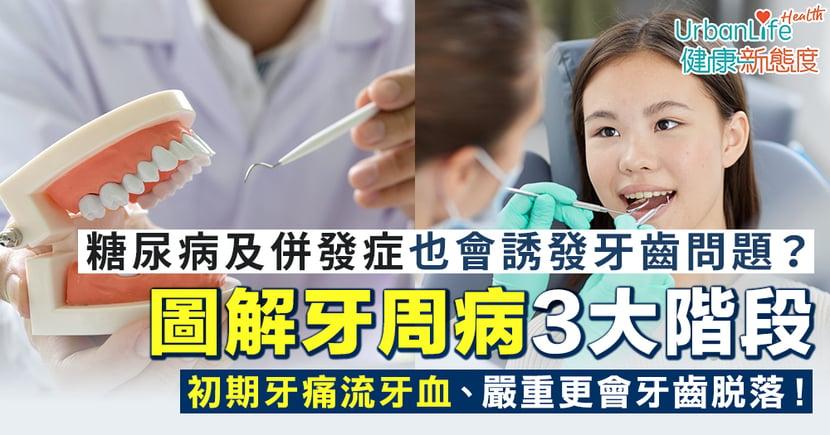【牙周病症狀】圖解牙周病3個階段和病徵 初期牙痛流牙血、嚴重更會牙齒脫落!