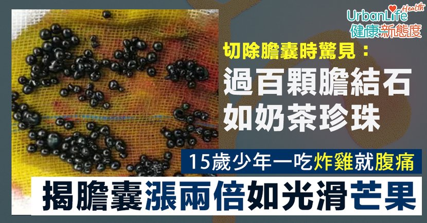 【膽結石症狀】15歲男一吃炸雞就腹痛 揭膽囊漲如芒果含過百顆「黑珍珠」