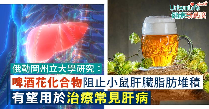 【肝病治療】俄勒岡州立大學研究:啤酒花含兩種化合物助阻止小鼠肝臟脂肪堆積 有望用於治療常見肝病