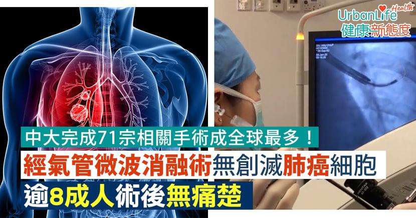【肺癌治療】經氣管微波消融術無創滅肺癌細胞 中大完成71宗逾8成人術後無痛楚