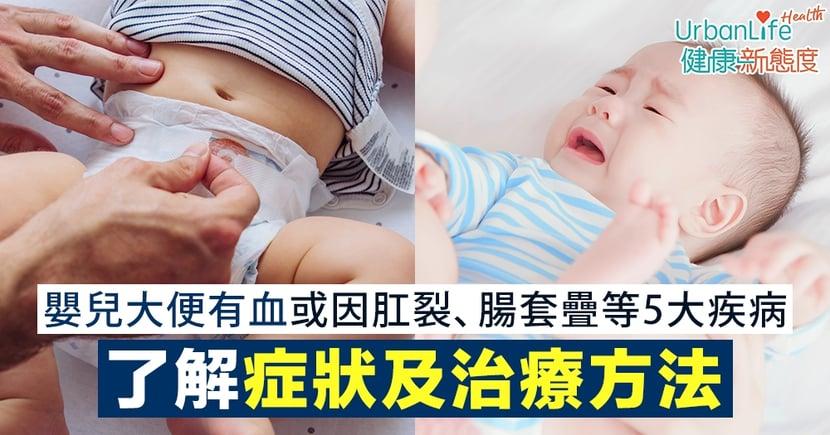【BB痾血】嬰兒大便有血或因肛裂、腸套疊等5大疾病 了解症狀及治療方法