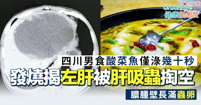【肝吸蟲感染】四川男食酸菜魚僅淥幾十秒 左半肝被肝吸蟲掏空、膿腫壁長滿蟲卵