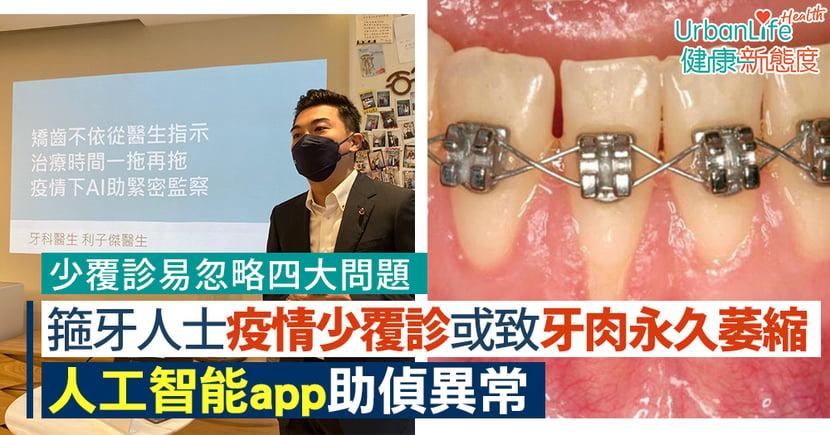 【箍牙問題】箍牙人士因疫情少覆診或致牙肉永久萎縮 人工智能app助偵異常(附四大常見問題)