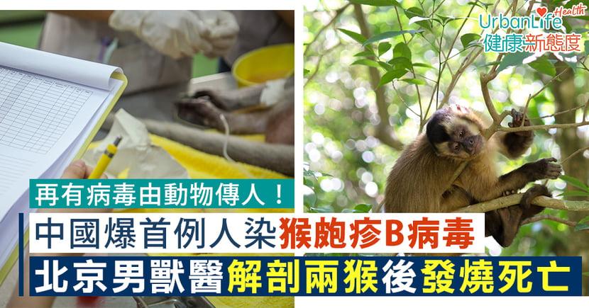 【猴B病毒】中國爆首例人染猴皰疹B病毒 北京男獸醫解剖兩猴後發燒亡