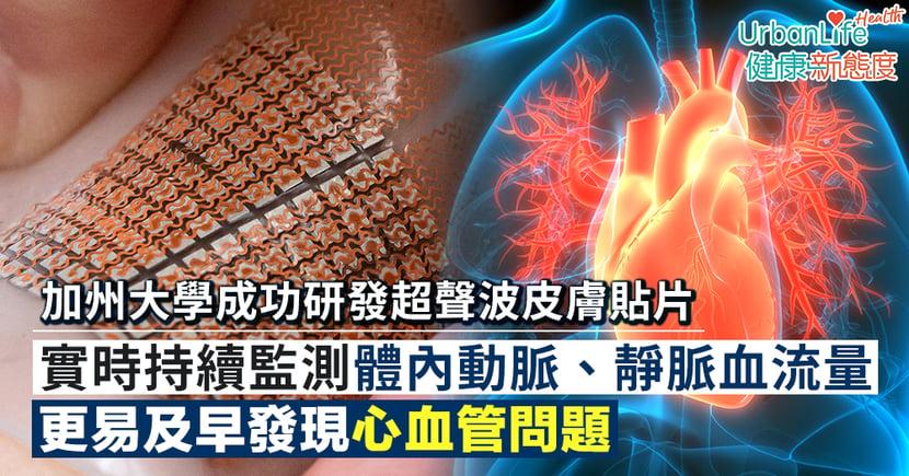 【心臟病檢查】加州大學成功研發超聲波皮膚貼片 實時持續監測血流量更易及早發現心血管問題