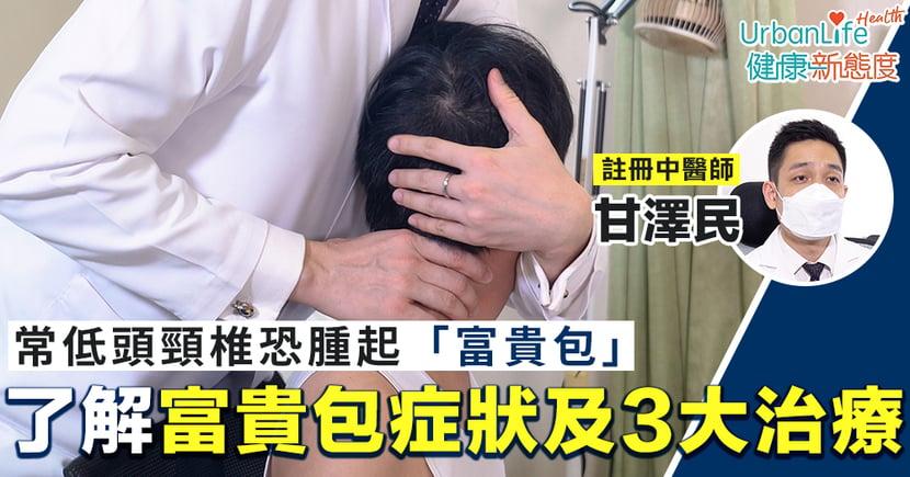 【富貴包消除】常低頭頸椎恐腫起「富貴包」 了解富貴包症狀及治療