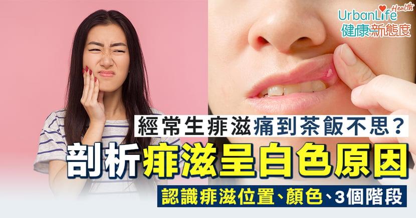 【痱滋白色】經常生痱滋痛到茶飯不思?痱滋位置、發展階段、呈白色的原因